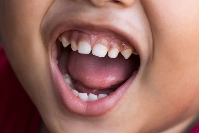 dental patient in need of frenectomy treatment
