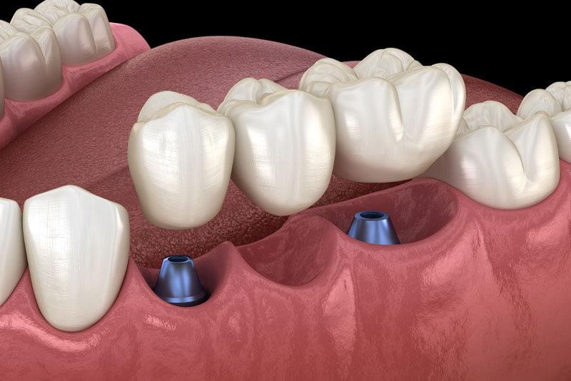 implant bridge model