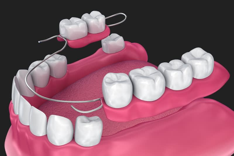 partial dentures model