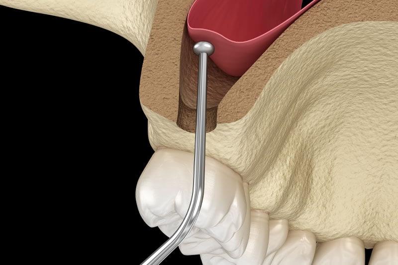 sinus lift graphic