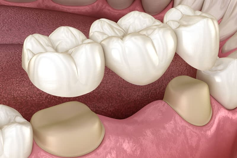 Dental Bridge Graphic