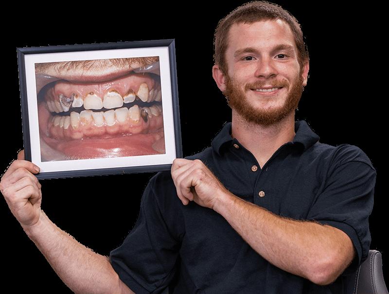 dental patient smiling after procedure Chula Vista CA