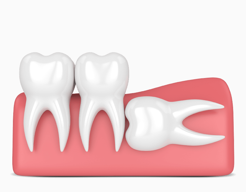 complete bony impacted tooth graphic