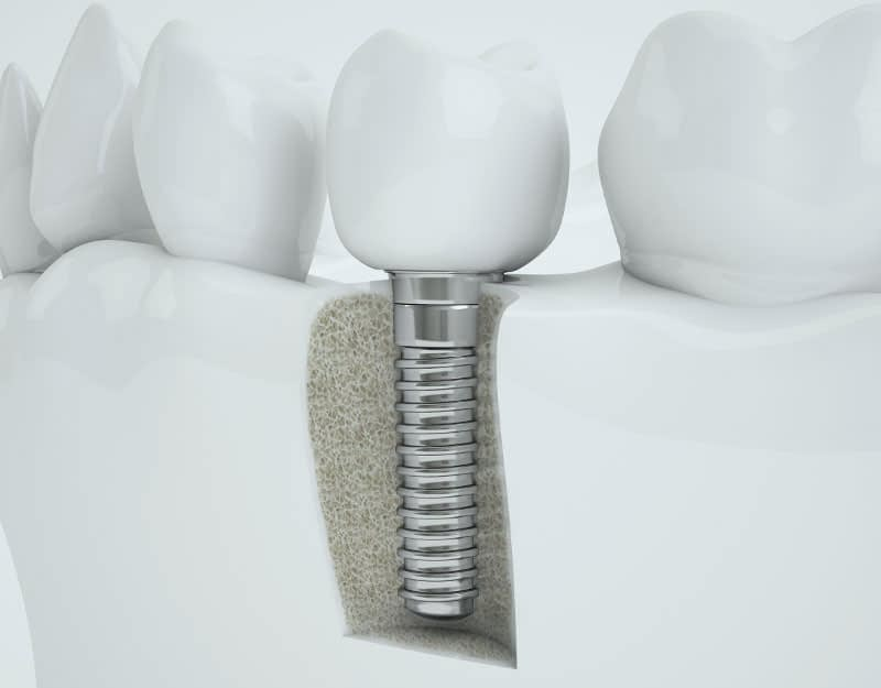 dental implant model Peabody, MA