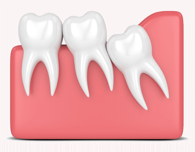 partial bony impacted wisdom tooth