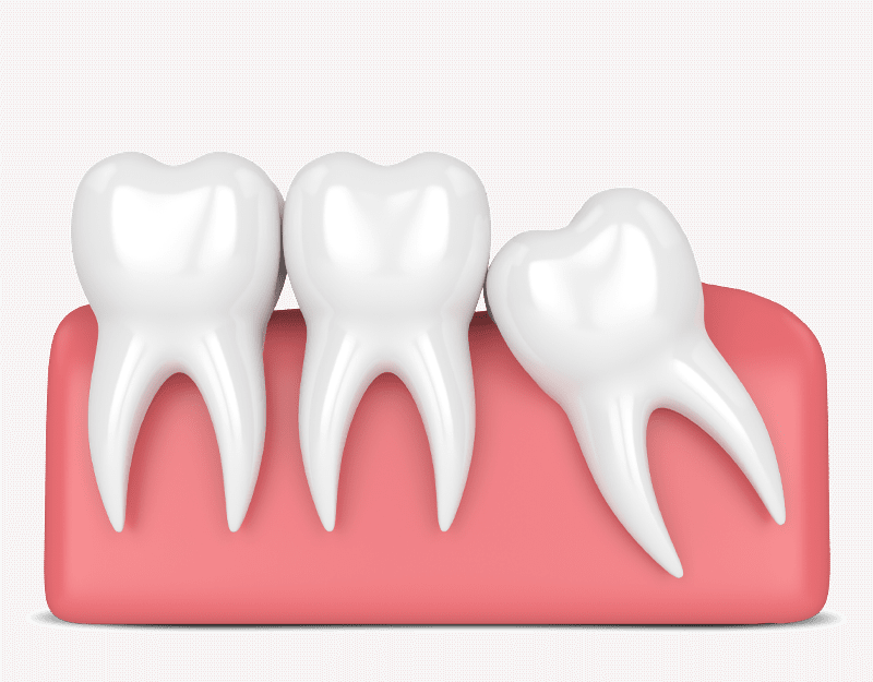 soft tissue impacted wisdom teeth graphic