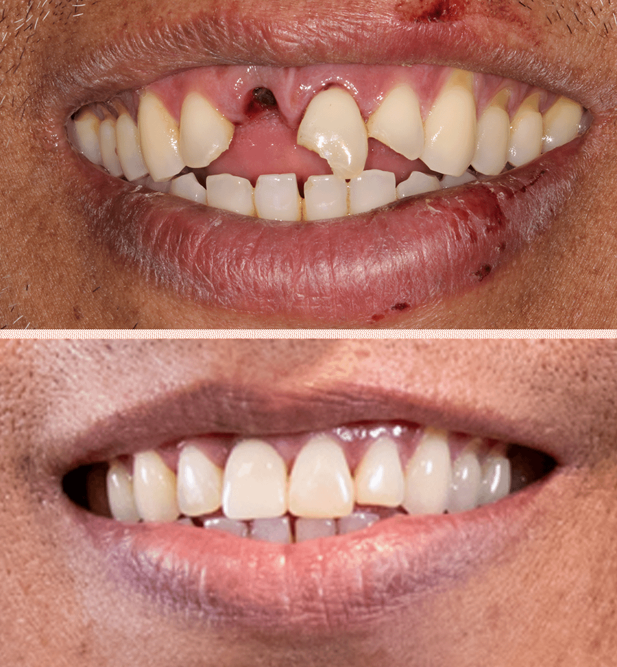 dereck dental implants before and after Dana Point CA