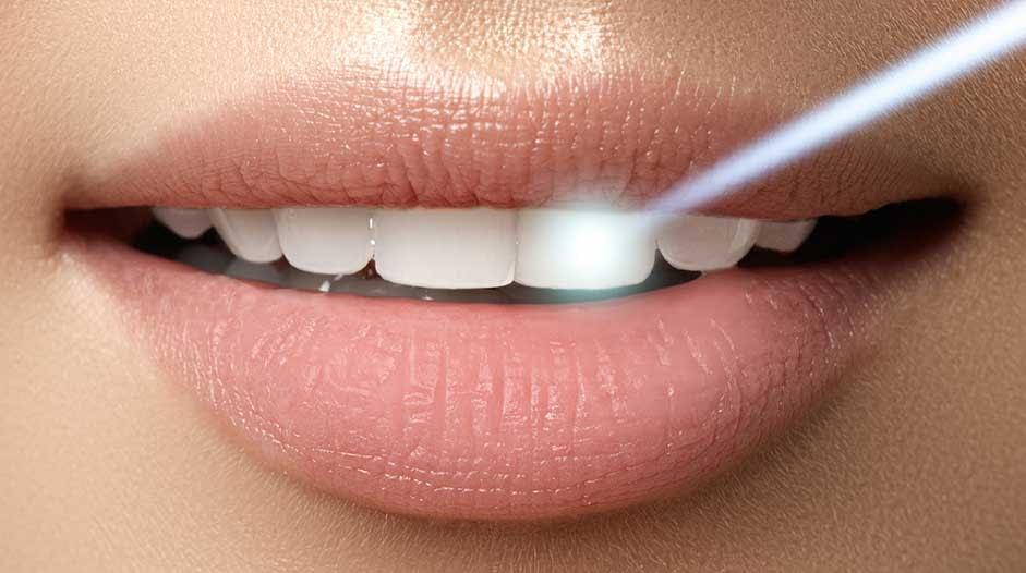 laser dentistry Woodbury, MN