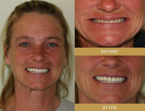 angie full mouth reconstruction before and after Arroyo Grande, CA