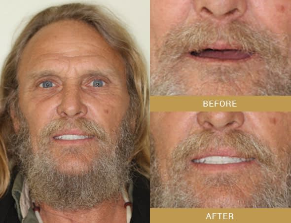 david full mouth reconstruction before and after Arroyo Grande, CA