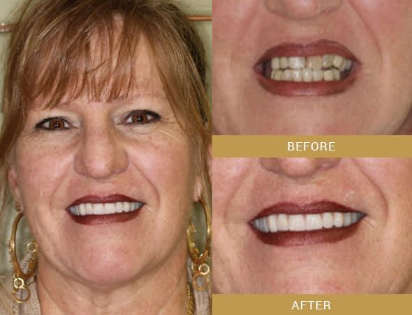 full mouth reconstruction before and after Arroyo Grande, CA