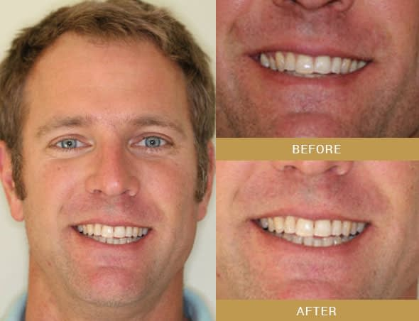 invisalign before and after Arroyo Grande, CA