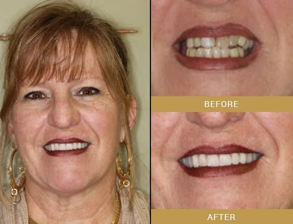 jayne full mouth reconstruction before and after Arroyo Grande, CA
