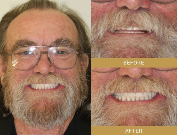 ron full mouth reconstruction before and after Arroyo Grande, CA