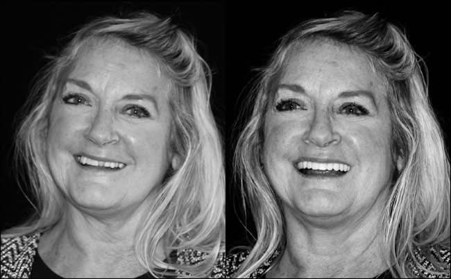 dental-before-and-after-1