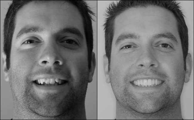 dental-before-and-after-10