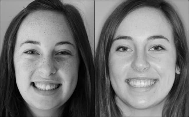 dental-before-and-after-11