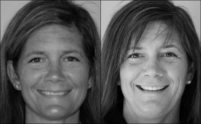 dental-before-and-after-13