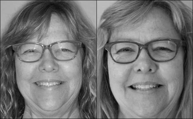 dental-before-and-after-14
