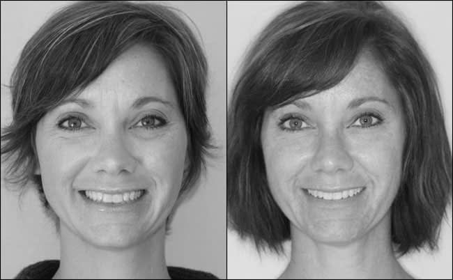 dental-before-and-after-15