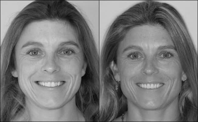 dental-before-and-after-17