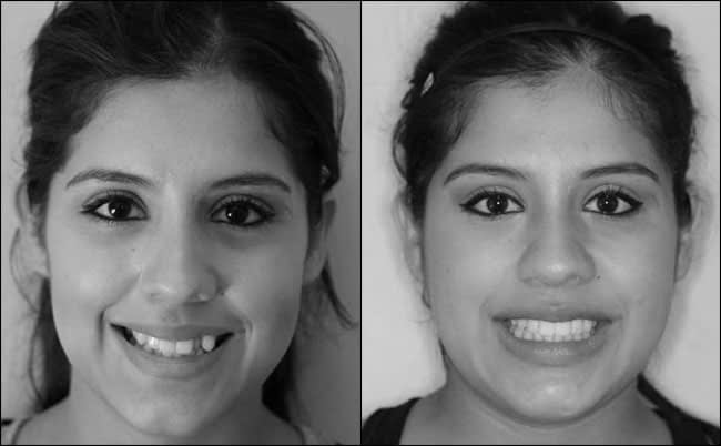dental-before-and-after-18
