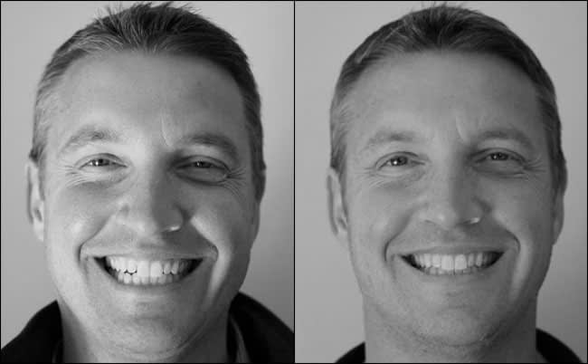dental-before-and-after-19