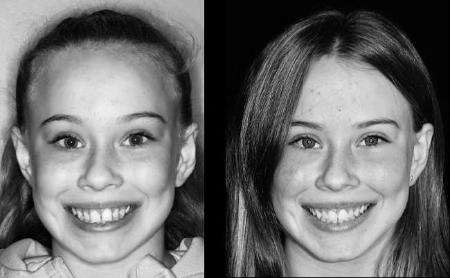 dental-before-and-after-5