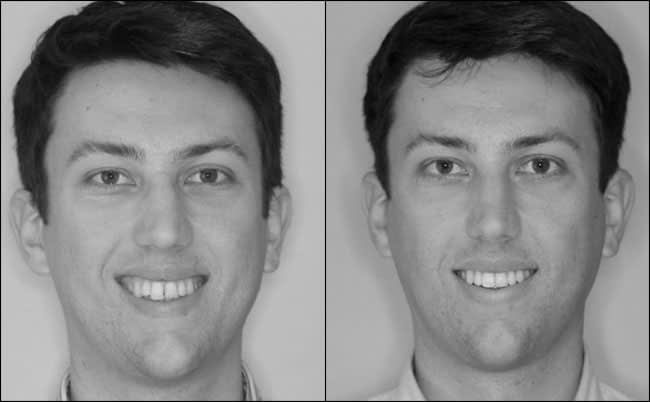 dental-before-and-after-6