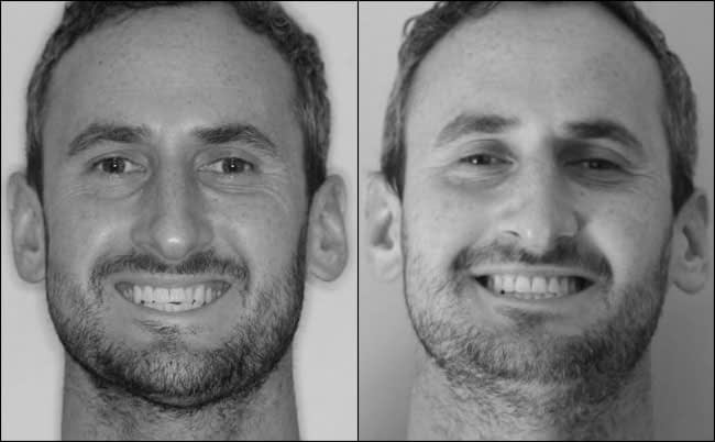 dental-before-and-after-8