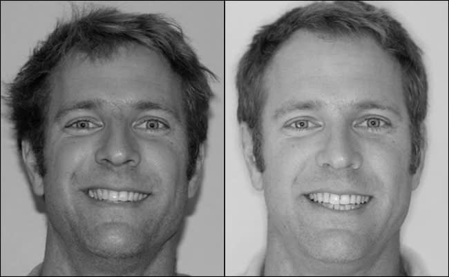 dental-before-and-after-9