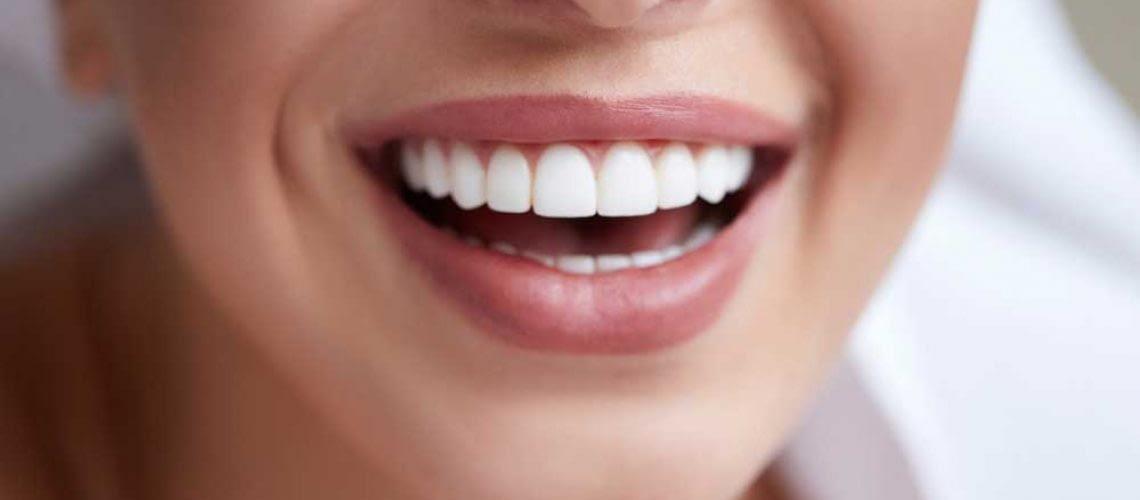 patient smiling with her new porcelain veneers