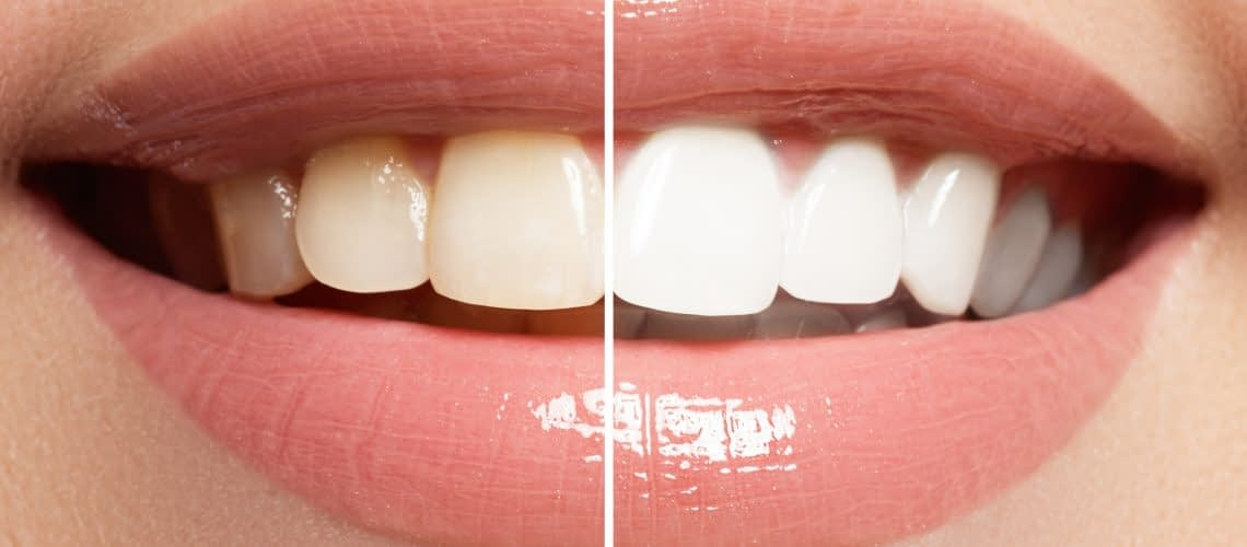 teeth whitening and cosmetic dentistry in arroyo granda ca