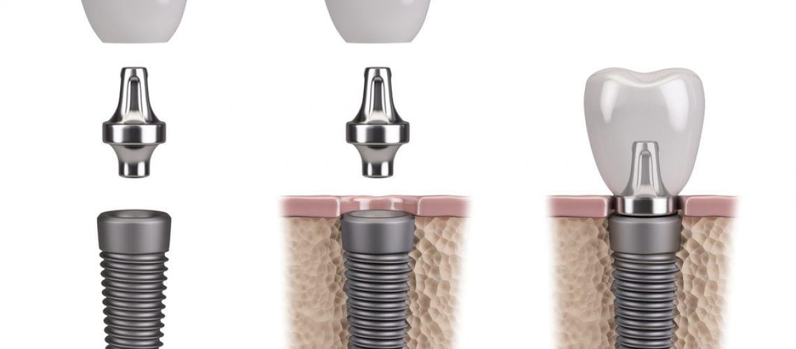Lowdown on Dental Implants