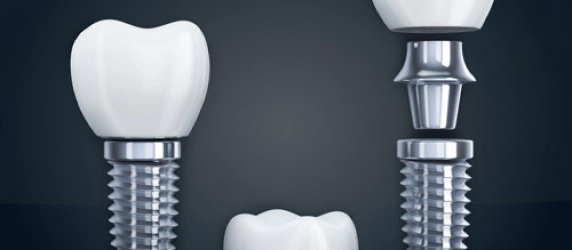 the three different parts that make up a dental implant