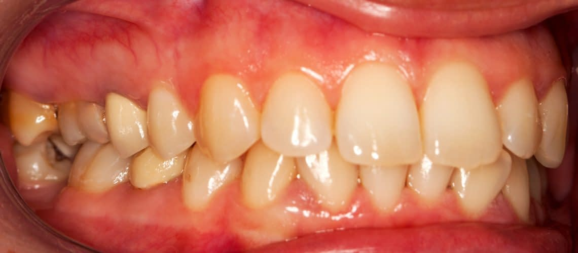 How a Dentist Can Treat Your Gum Disease