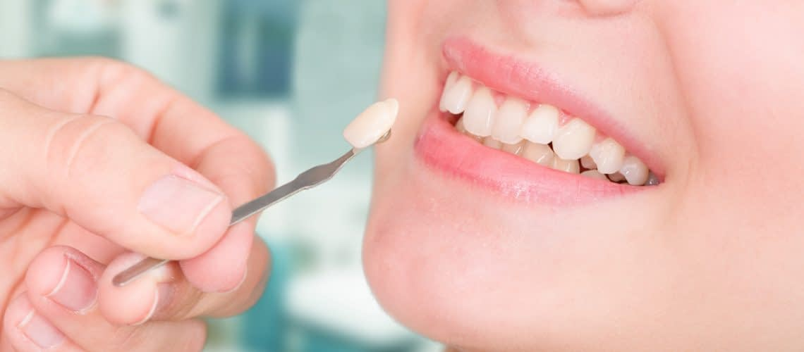 Cosmetic Dentistry Information: Know the Facts