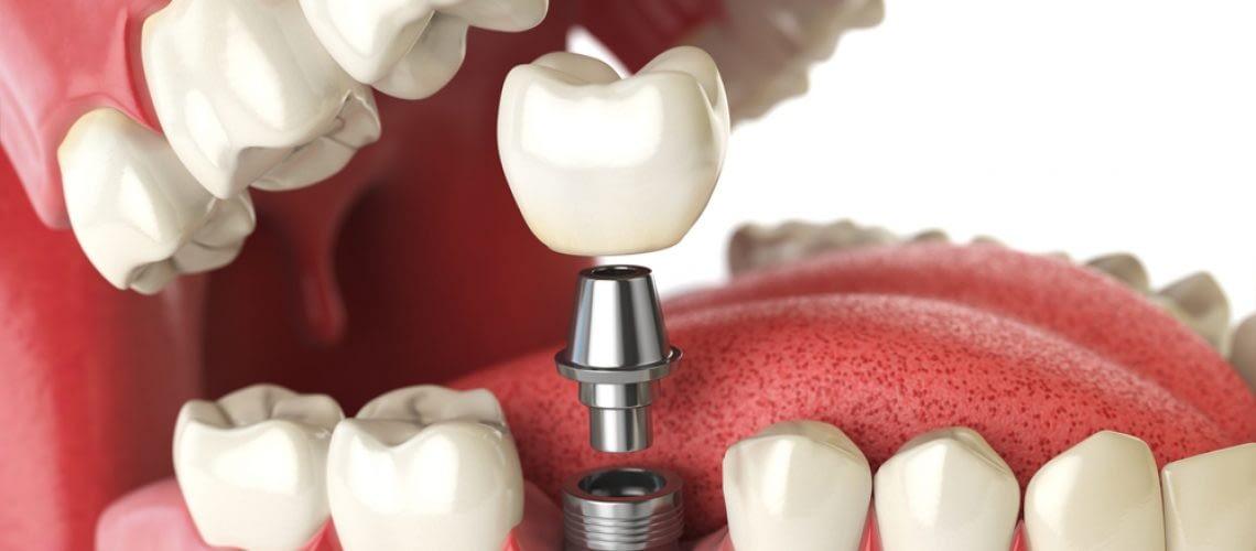 Dental Implant Gums