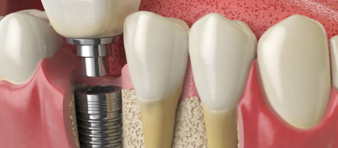 Dental Implant Bone Grafting and Growth