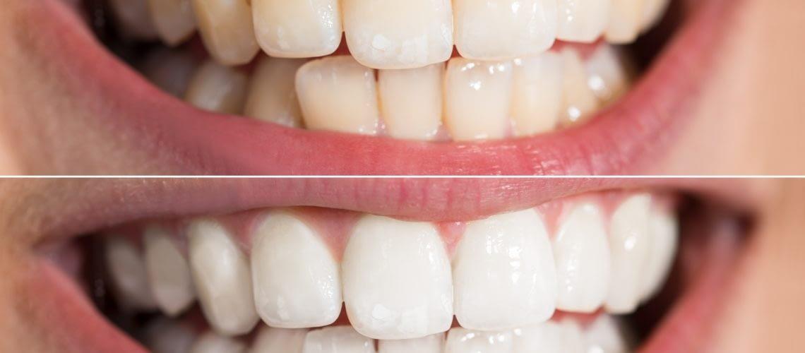 dentist midland tx