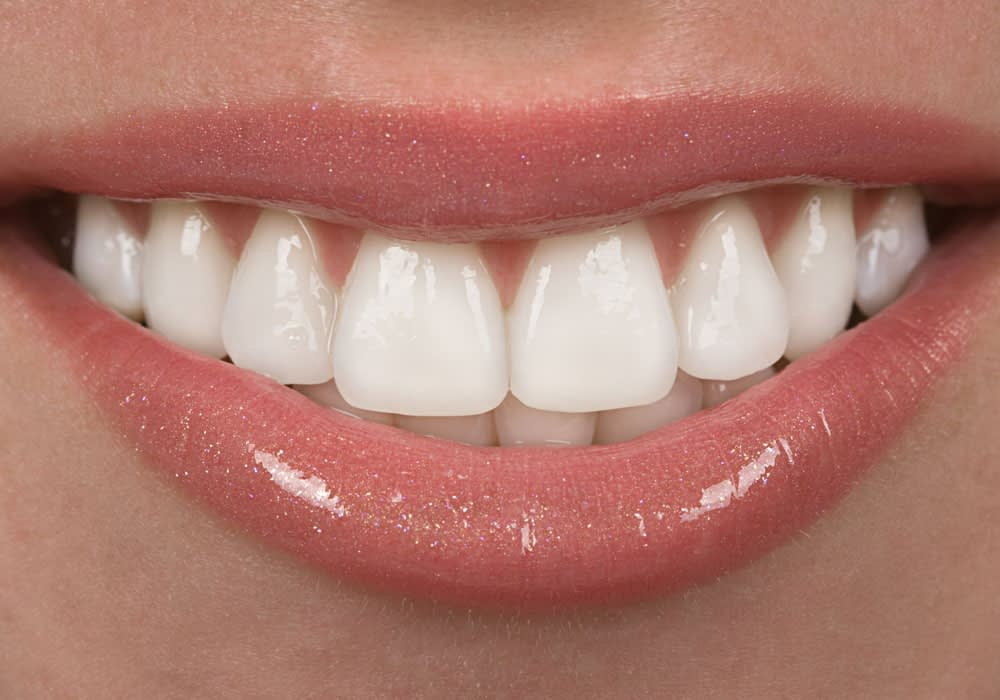 dental patient smiling after porcelain veneers procedure Dana Point CA
