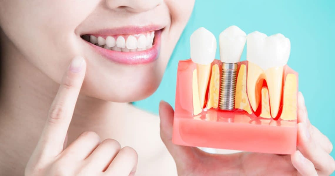 Dental Implant Patient Holding A Model Of A Dental Implant