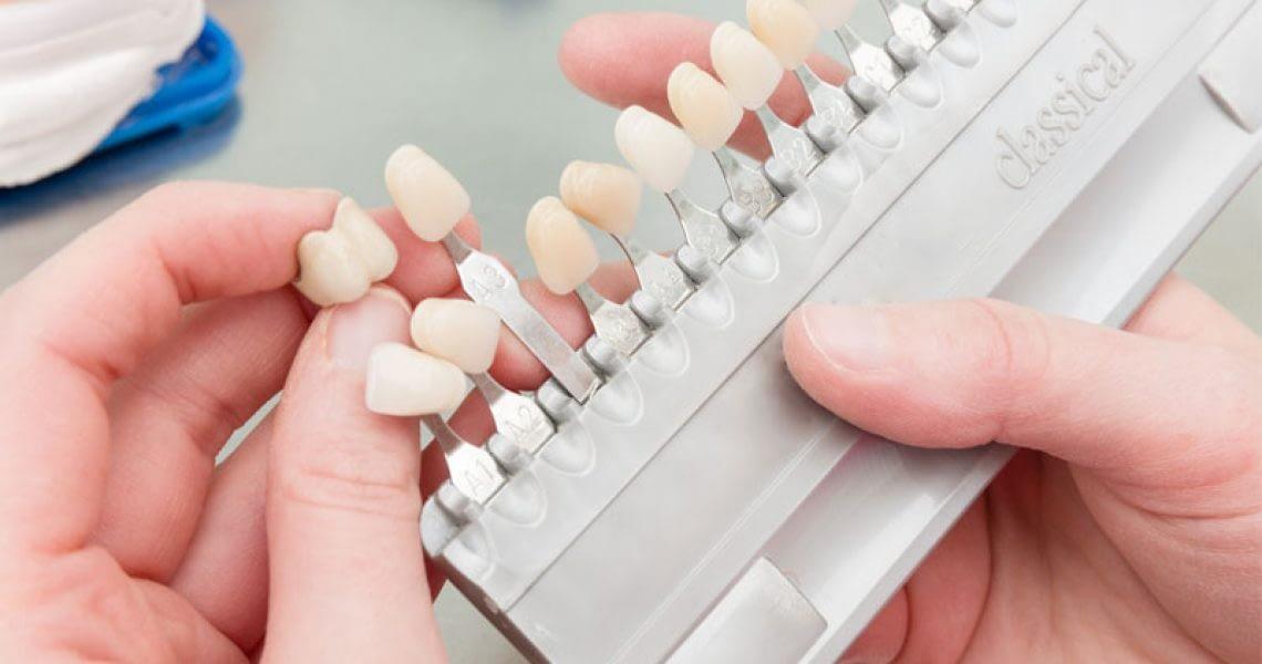 Rack Of Dental Veneers