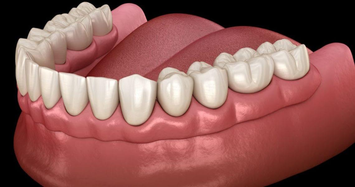 Dentures On Gumline
