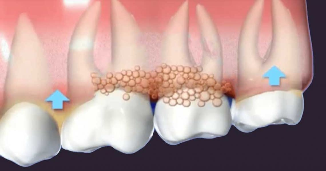 a diagram of gums affected by gum disease