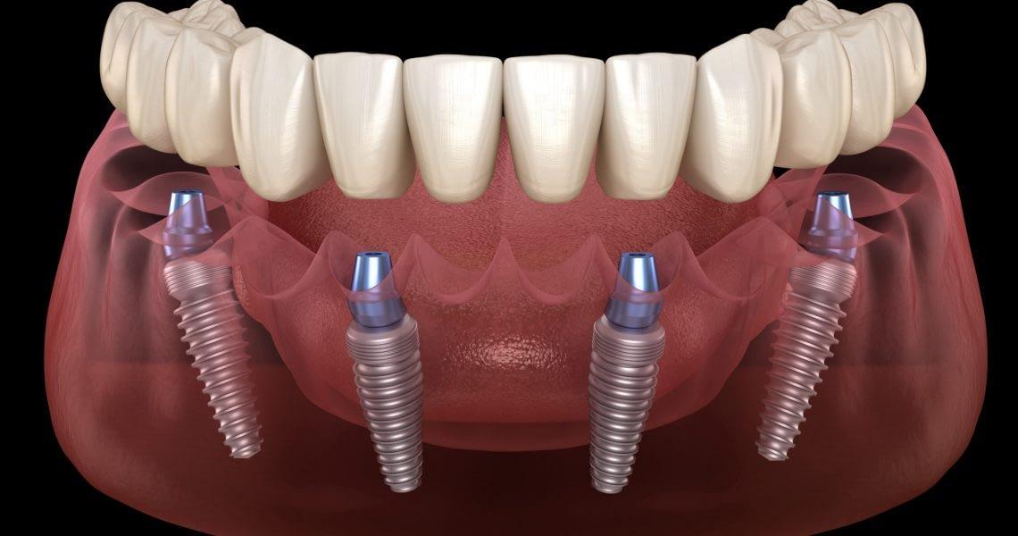 full arch dental implants in Phoenix, AZ