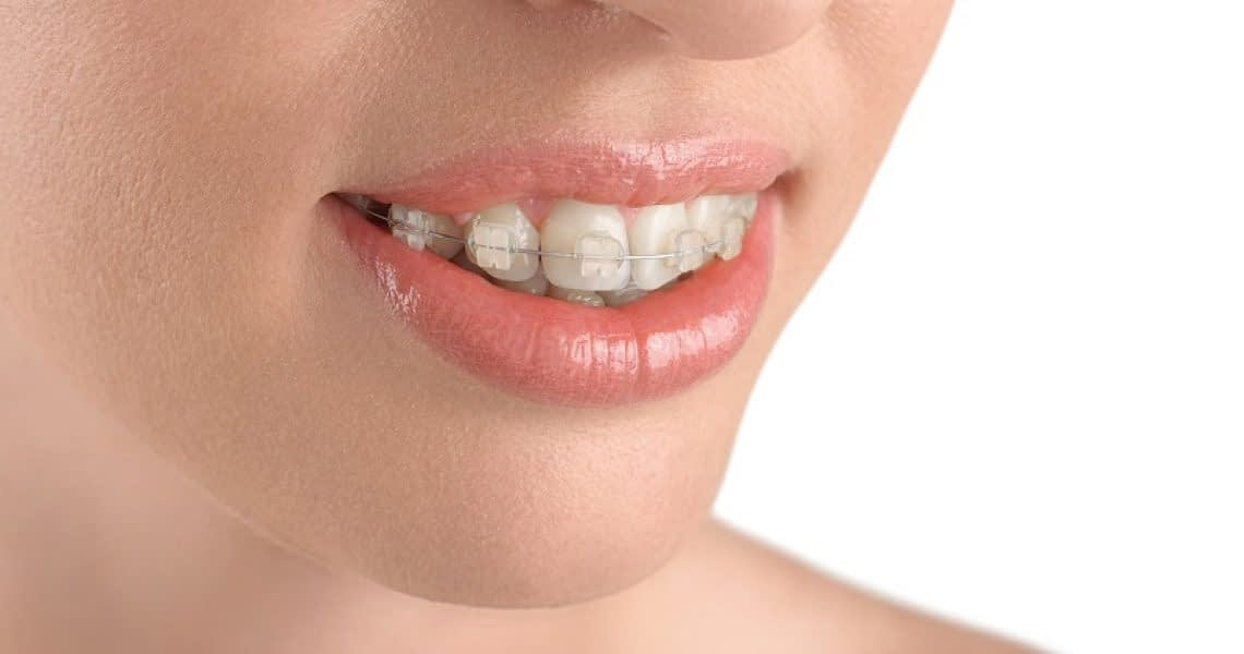orthodontics glendale az