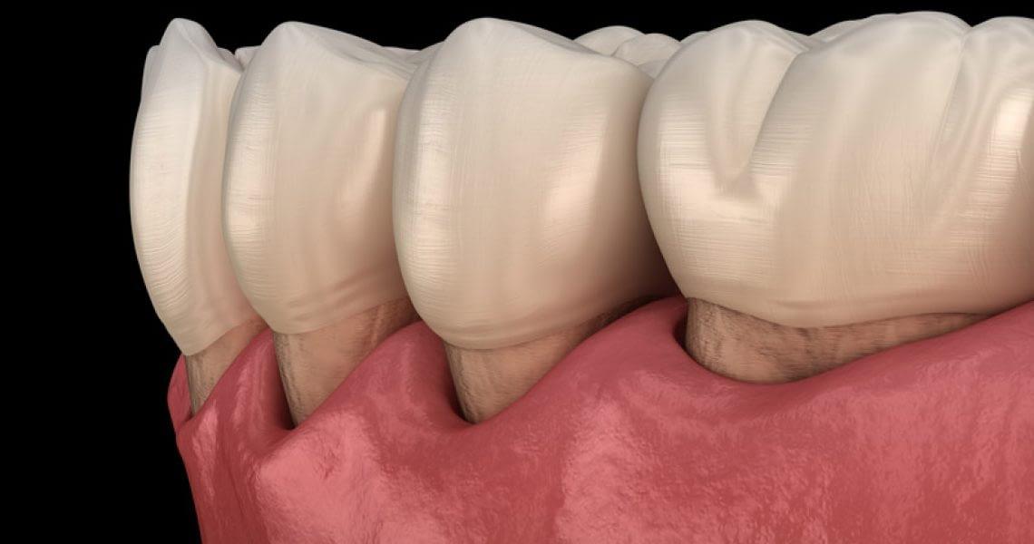 Gum Recession Graphic Close Up