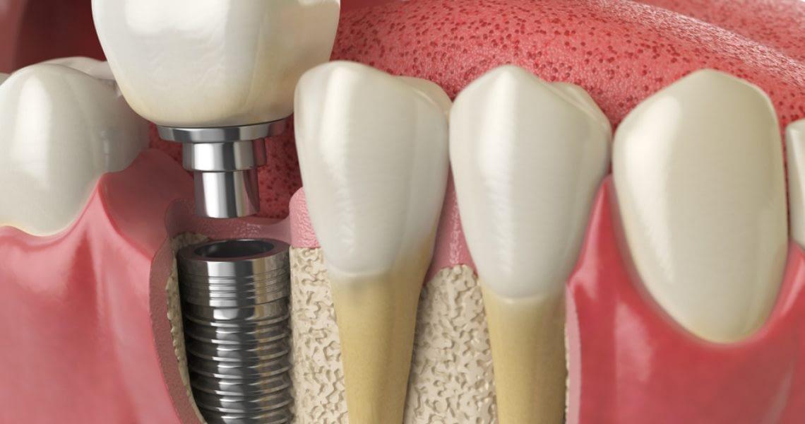 implantplacedafterbonegrafting