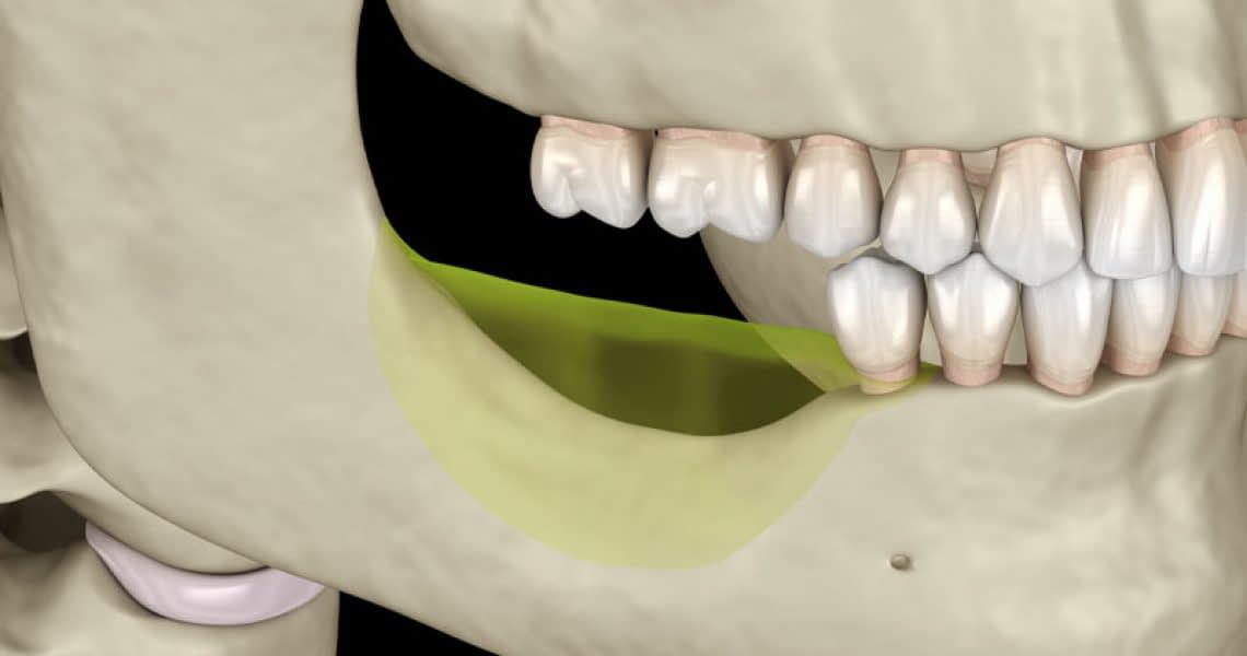Jaw With Bone Loss